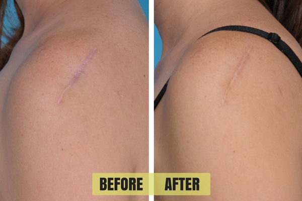 Results from using the Fat Injection procedure on a deep scar.