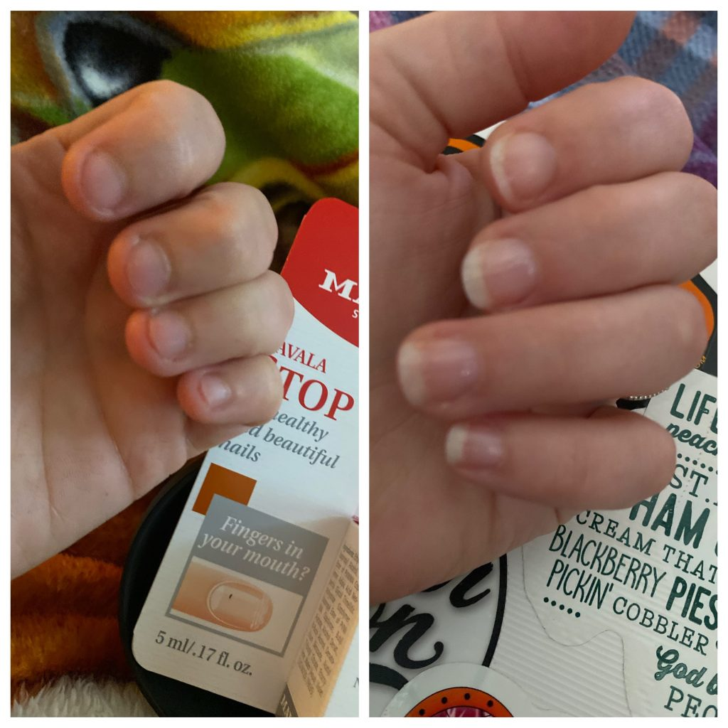 In my nails