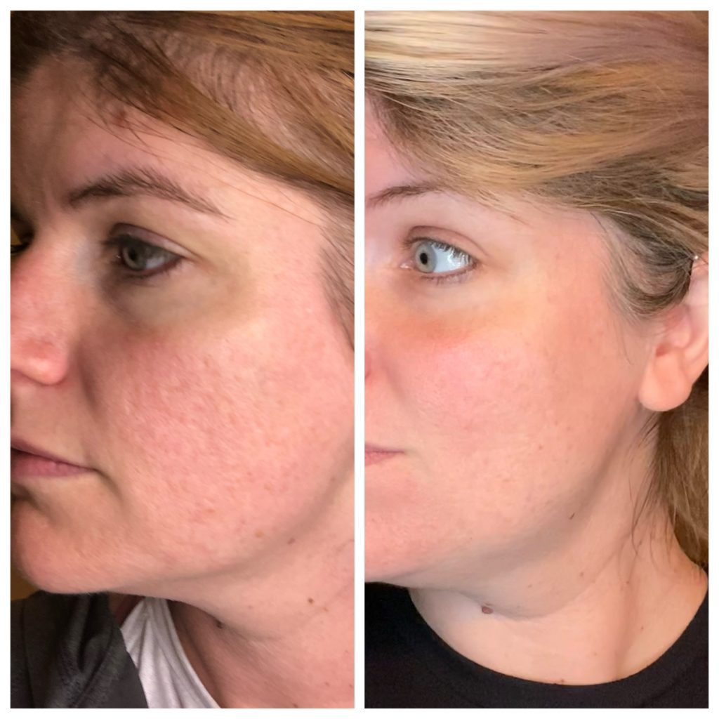 Before and after skincare after nearly a year.